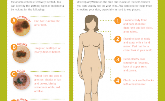 How are nudist with skin cancer — 11